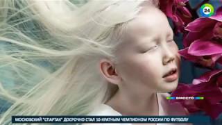 Альбиносы: белые вороны среди людей