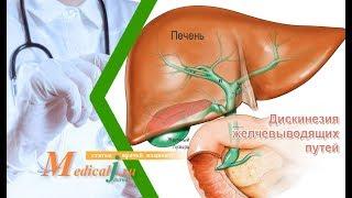 Дискинезия желчевыводящих путей. Какие симптомы? Как определить? Как лечить?