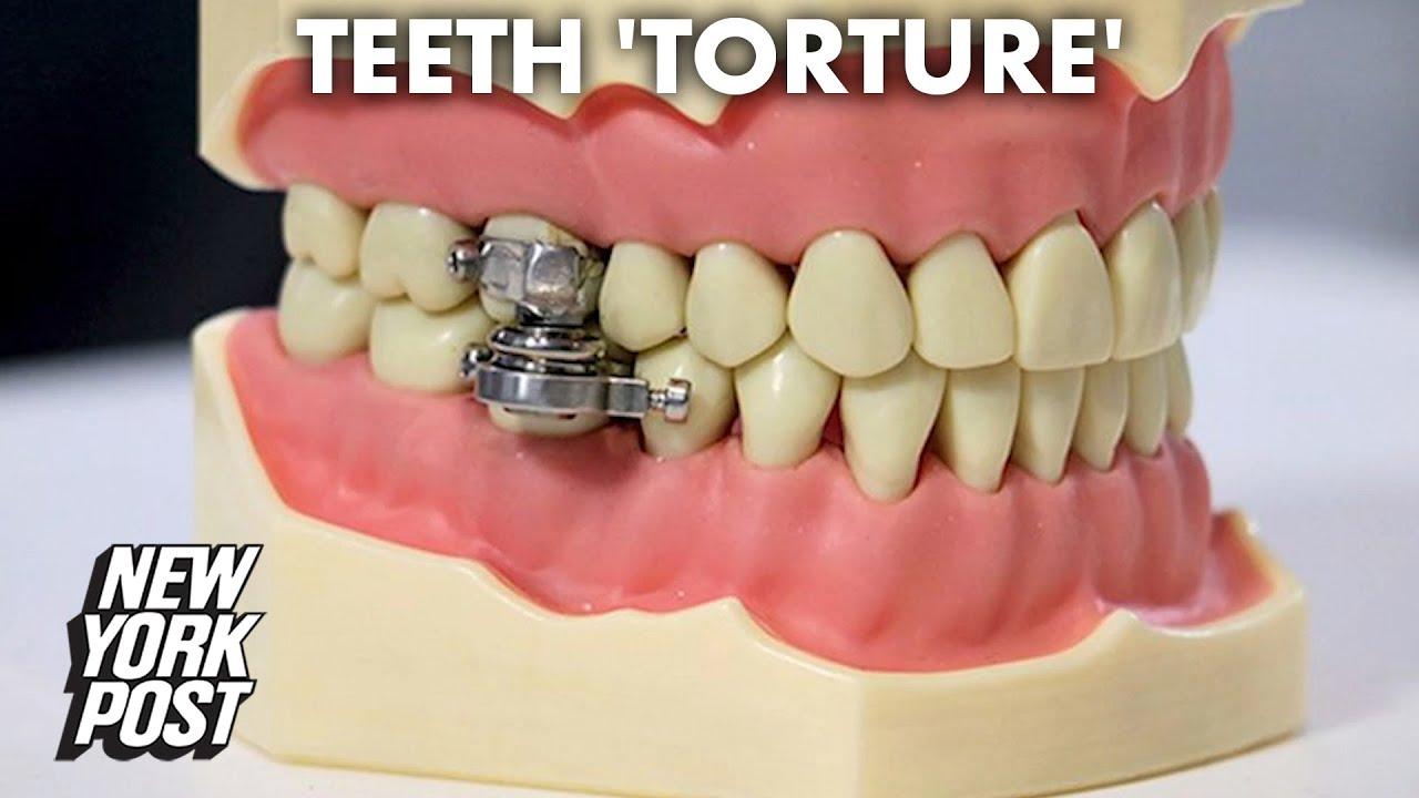 Разработан «замок» для рта, помогающий похудеть