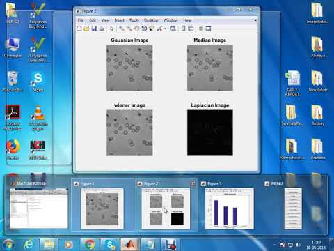 White Blood Cell Segmentation in Microscopic Blood Images Using Digital Image Processing