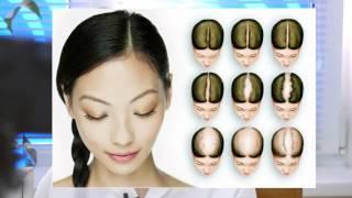 видео Как лечить алопецию?