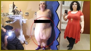 Panniculectomy After Massive Weight Loss - Transformation Tuesday with Dr. Katzen