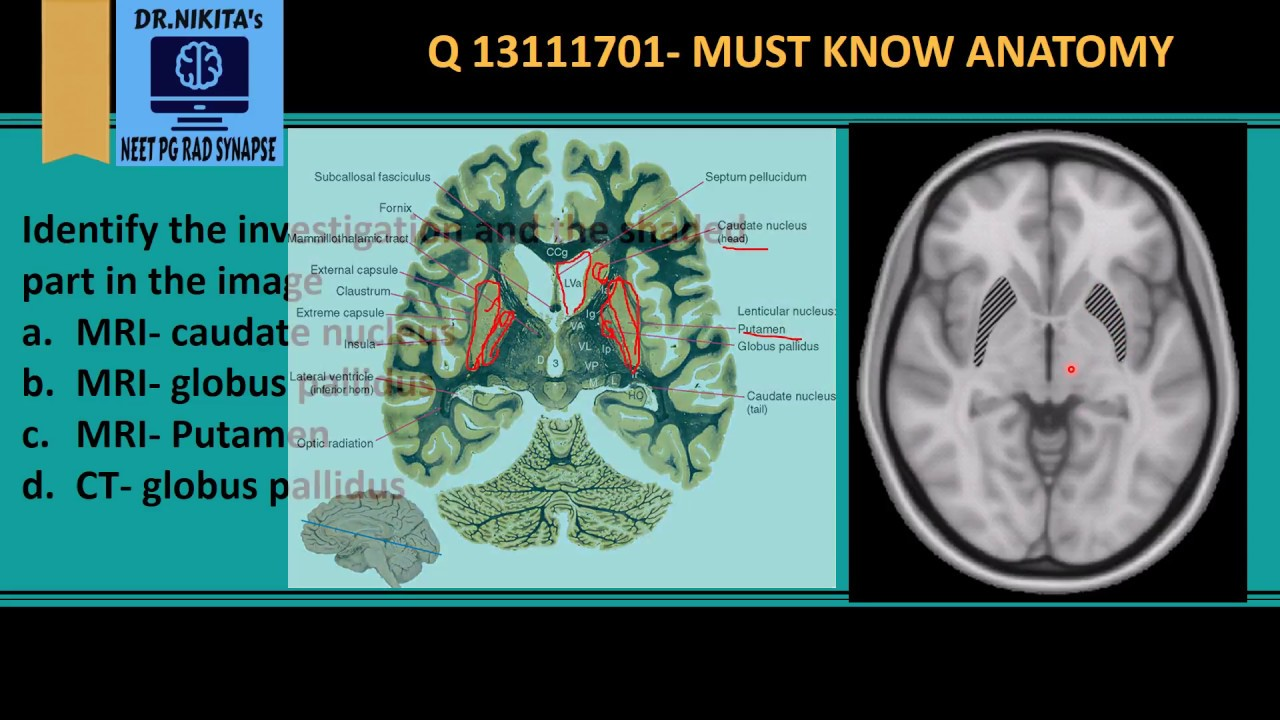 MRI Brain anatomy - Basal ganglia - YouTube