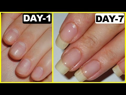 How to Grow Nails Faster - GUARANTEED RESULTS | Anaysa