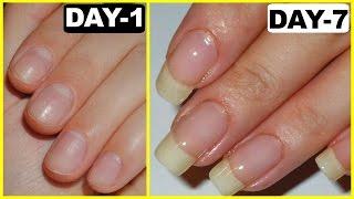 How to Grow Nails Faster - GUARANTEED RESULTS | PrettyPriyaTV