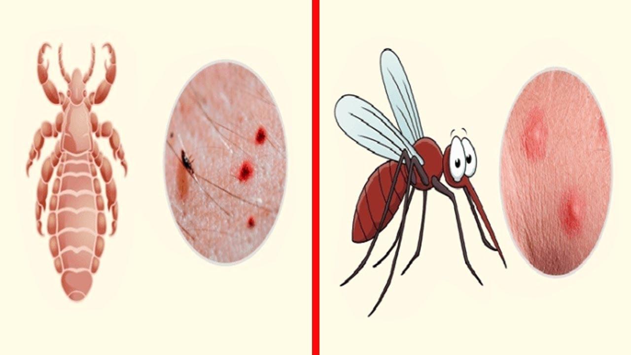 كيفية تحديد نوع الحشرة التي قامت بلدغك إليك دليل بأكثر لدغات الحشرات انتشارا Youtube