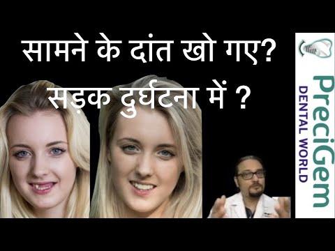 सामने-के-दांत-खो-गए-?-सड़क-दुर्घटना-मेंl-road-accident-mai-frontteeth-loss-in-hindi-dental-implants