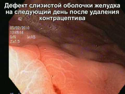 Вопрос: Как удалить внутриматочную спираль?