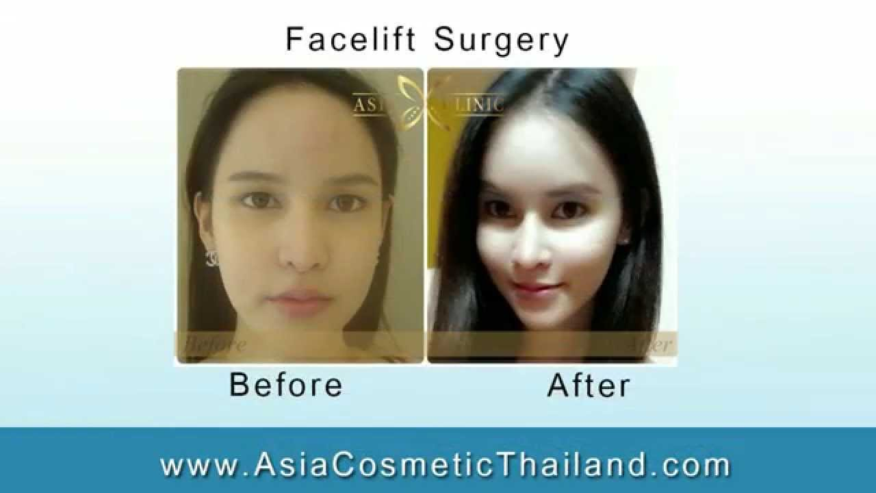 plastic surgery the dangerous add ons Vaginal mesh can be a safe, effective option when used  vaginal mesh  surgeries have been the subject of serious concern  plastic that can be cut into  different sizes and shapes, depending on the procedure for which it is used  it  is used appropriately, it may add to the durability of the prolapse repair.