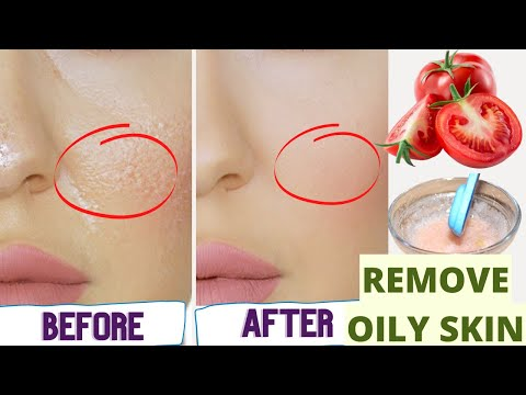 How to Get rid of Oily Skin Permanently - Home Remedies for Oily Skin & Pimples - Get Glowing Skin