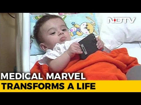 Download Baby Born With 8 Limbs Operated On Successfully Near Delhi