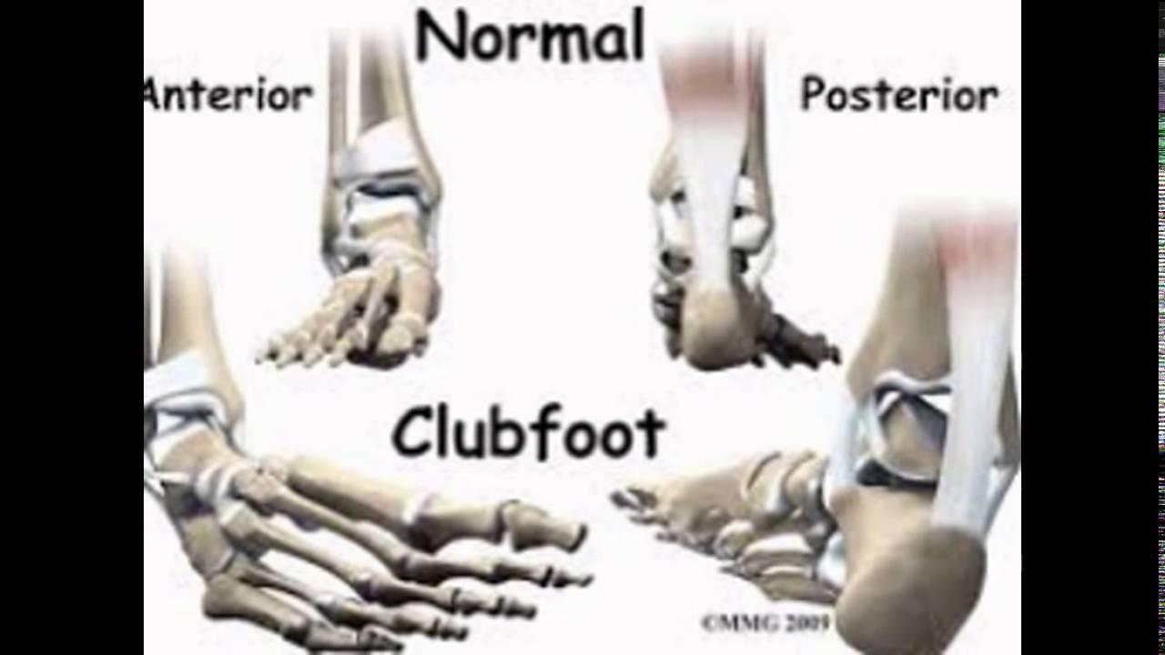 ctev x ray findings|ctev deformity|causes of ctev|ctev in ...