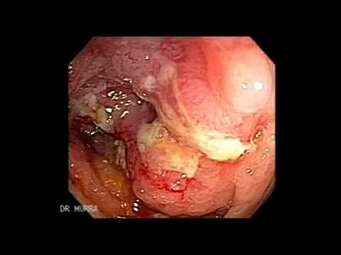 Colonoscopia de Cancer del Colon y Polipos Grandes