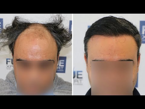 FUE Hair Transplant (3500 Grafts in NW V) Dr  Juan Couto - FUEXPERT CLINIC-  Madrid, Spain