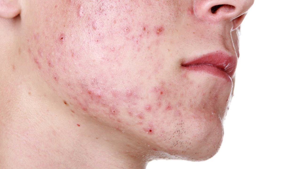 Post Inflammatory Erythema Dermletter