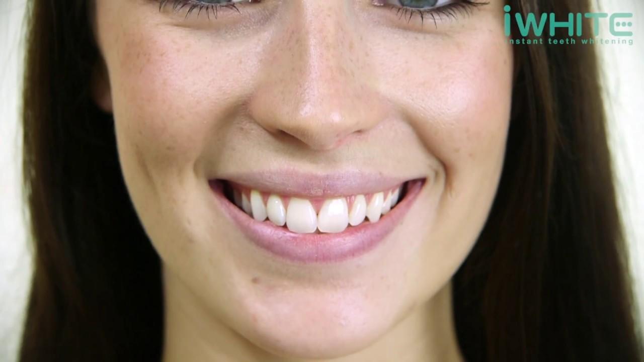 Teeth Whitening Trays From Dentist My Los Feliz Beauty Blog