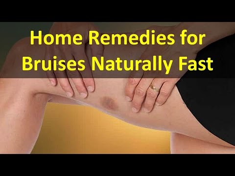 How To Make Bruise Go Away Fast