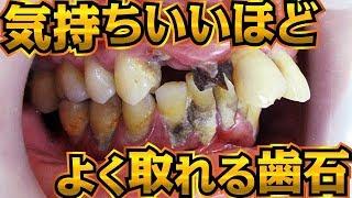 気持ちいいほどよく取れる歯石[Remove tartar]歯石除去Vol.9(牙石去除治療)