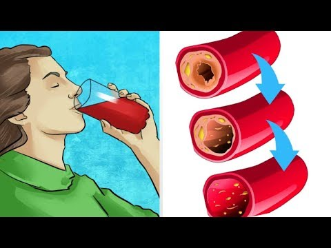 Amazing Way To Unclog Your Arteries From Cholesterol Naturally