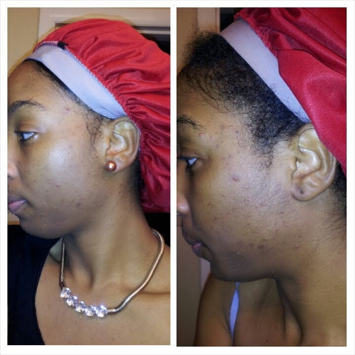 Black hookup white lady toner before and after