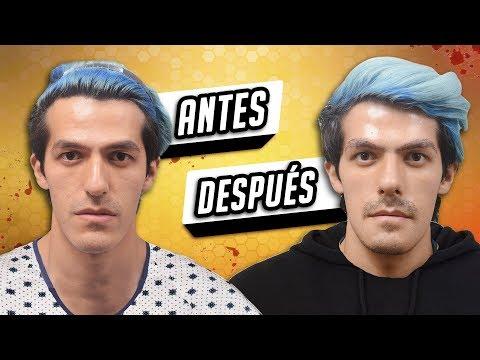 ANTES Y DESPUES DE MI CIRUGÍA DE NARIZ    POLINESIOS VLOGS
