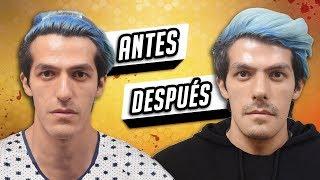 ANTES Y DESPUES DE MI CIRUGÍA DE NARIZ  | POLINESIOS VLOGS
