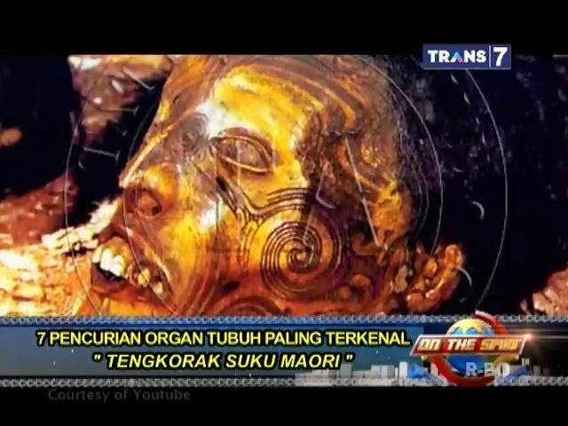 On The Spot - 7 Pencurian Organ Tubuh Paling Terkenal