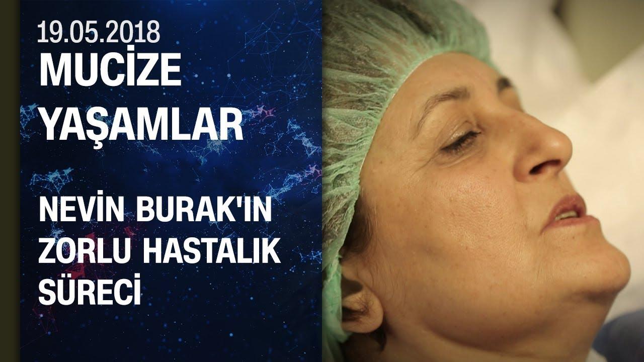 Nevin Burak'ın izleyenleri derinden sarsacak zorlu hastalık süreci - Mucize Yaşamlar 19.05.2018