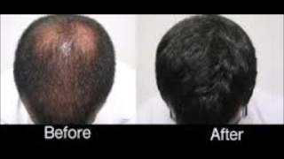 Almond Oil For Hair Loss Before And After