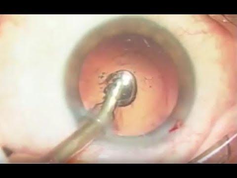 Imagen de Cirugía de cataratas - OftalVist - 29º Congreso de la SECOIR