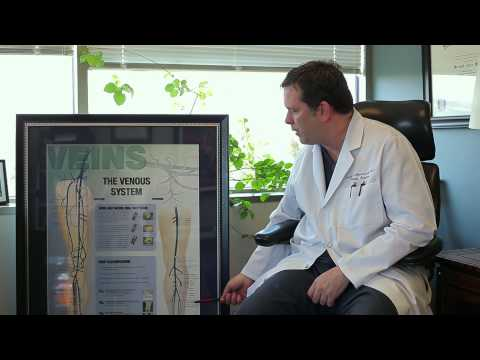 Lets talk Varicose Veins with Dr. Mountcastle