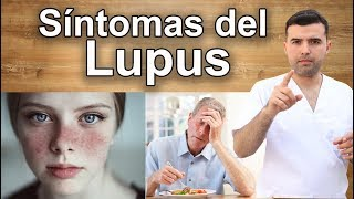 Síntomas del Lupus Que Pocas Personas Conocen