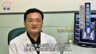 嘉基 - 泌尿道上皮細胞癌患者,末期腎衰竭洗腎風險高 thumbnail