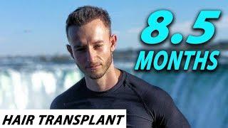 FUE Hair Transplant 8.5 months (post op) Istanbul, Turkey