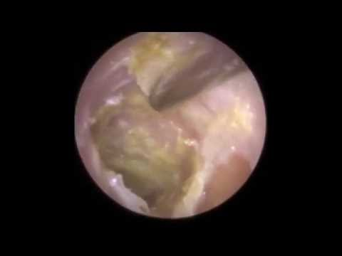 Infection of Eardrum visible after Hard Ear Wax Removal - Mr Neel Raithatha (The Hear Clinic)