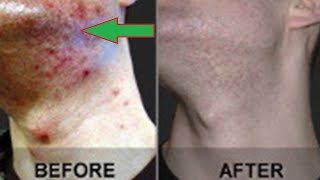 How to Get Rid  of Folliculitis at Home in 5 Day! Guaranteed Result
