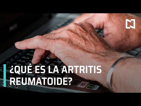 artritis reumatoide y sus sintomas