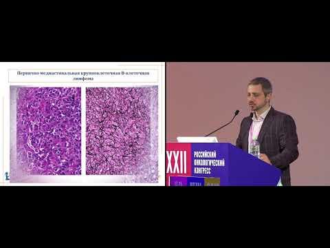 Классическая лимфома Ходжкина и другие крупноклеточные лимфомы средостения