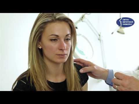 Masáž nosu - MUDr. Záruba - Ústav estetické medicíny