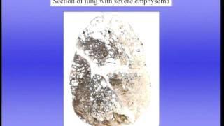 Pulmonary Gas Exchange-Part II