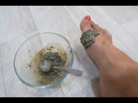 Как убрать косточку на ноге у большого пальца в домашних условиях видео