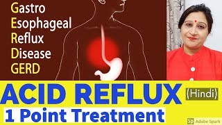 How to cure acid reflux naturally fast. gastroesophageal disease acupressure home remedies (gerd). products are available at http://bit.ly/sambhavcure...