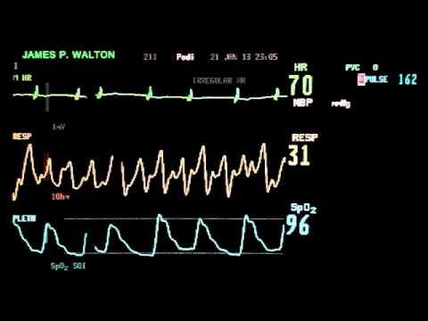EKG Lab
