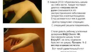ГИГРОМА КИСТИ УШЛА БЕЗ ОПЕРАЦИИ(, 2015-05-16T21:07:53.000Z)