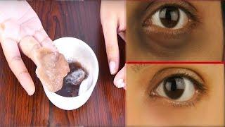 एक ही बार यूज करके अपने आंखों के काले घेरे हटा सकते हैं // dark circles under eyes home remedy