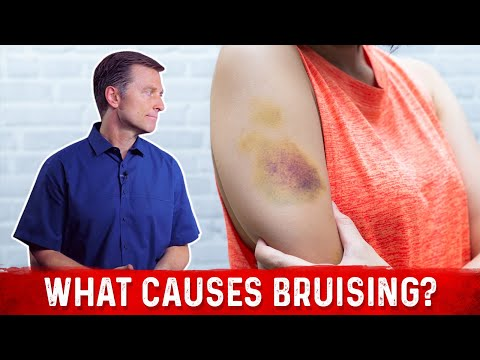 What Causes Bruising (without trauma)?