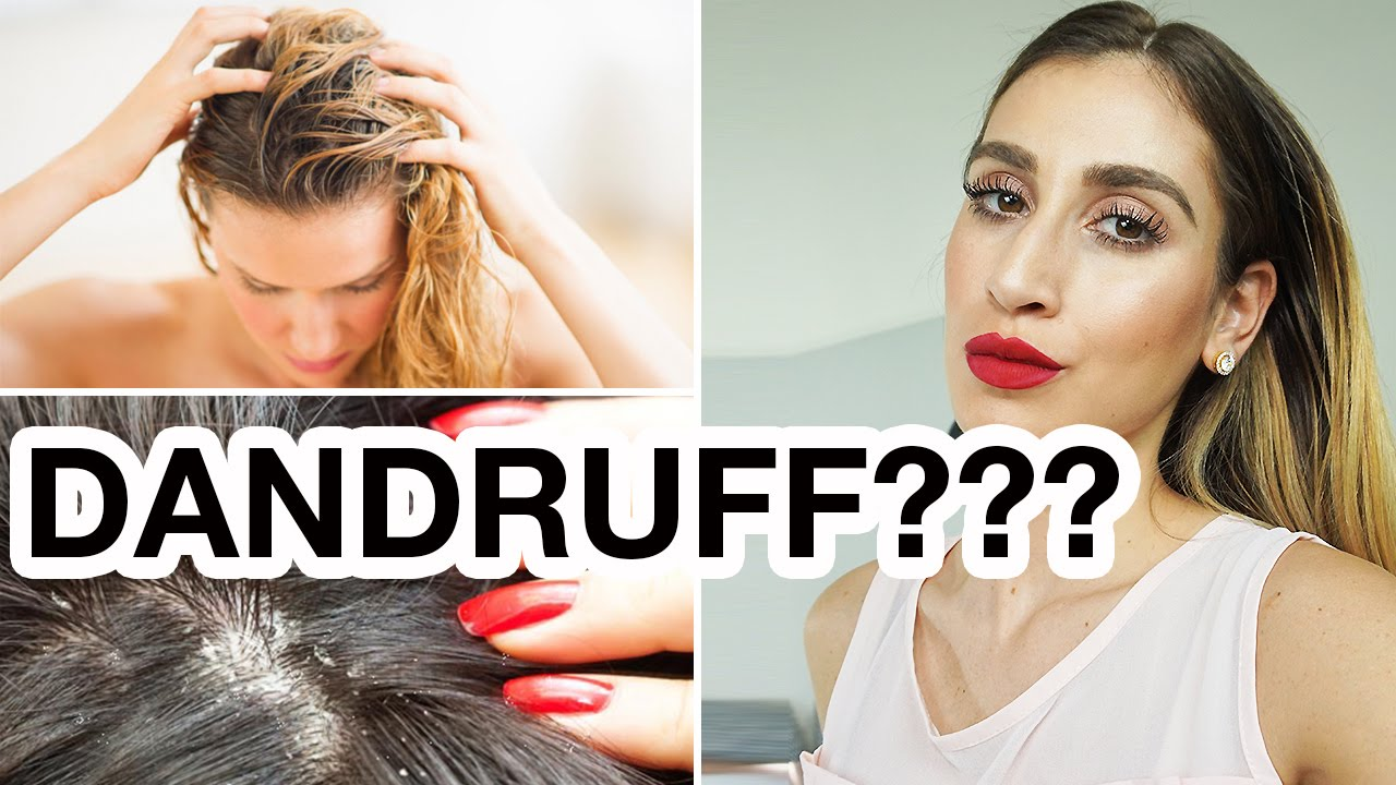 16 Mind Blowing Dandruff And Dry Itchy Scalp Treatments Youtube
