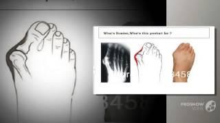 вальгусное отклонение первого пальца стопы      - valgus pro описание