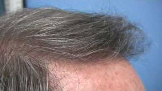 Doctor Wong Hair Transplant - 4030 Grafts - 1 Session