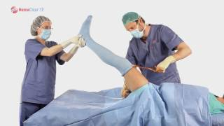 Инструкция по применению гемаблока на ногу.